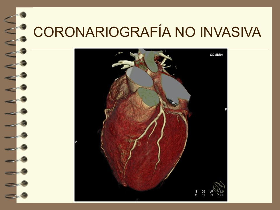 CORONARIOGRAFÍA NO INVASIVA