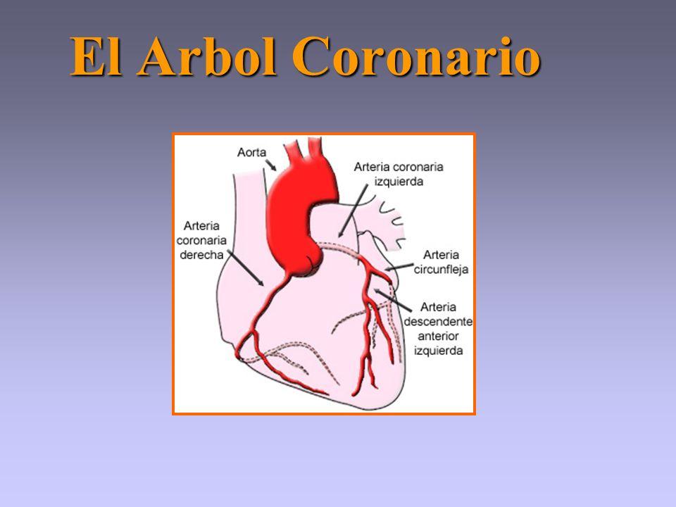 El Arbol Coronario