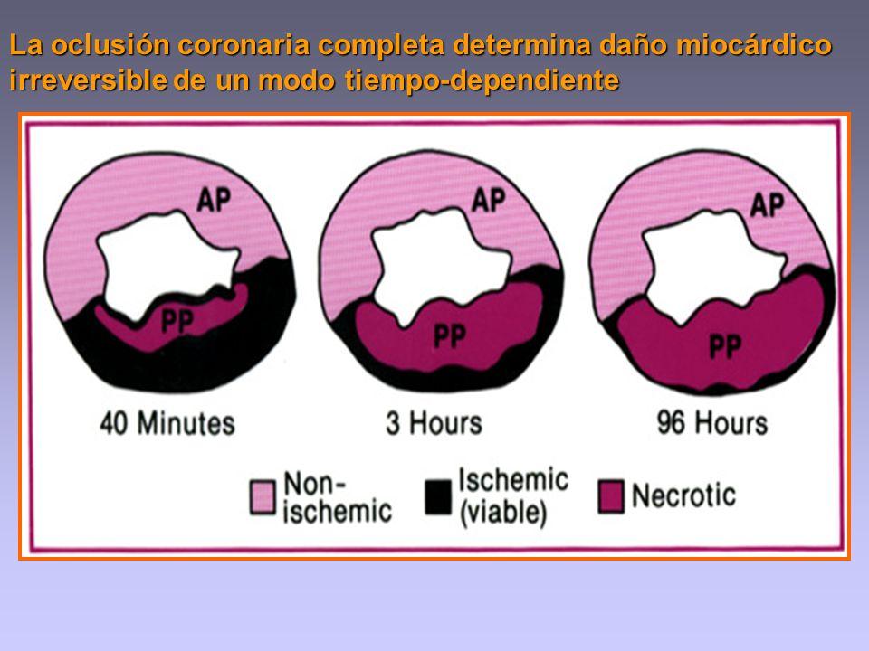 La oclusión coronaria completa determina daño miocárdico irreversible de un modo tiempo-dependiente