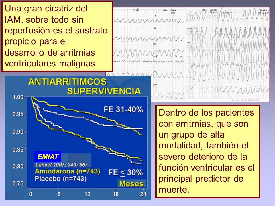 Una gran cicatriz del IAM, sobre todo sin reperfusión es el sustrato propicio para el desarrollo de arritmias ventriculares malignas