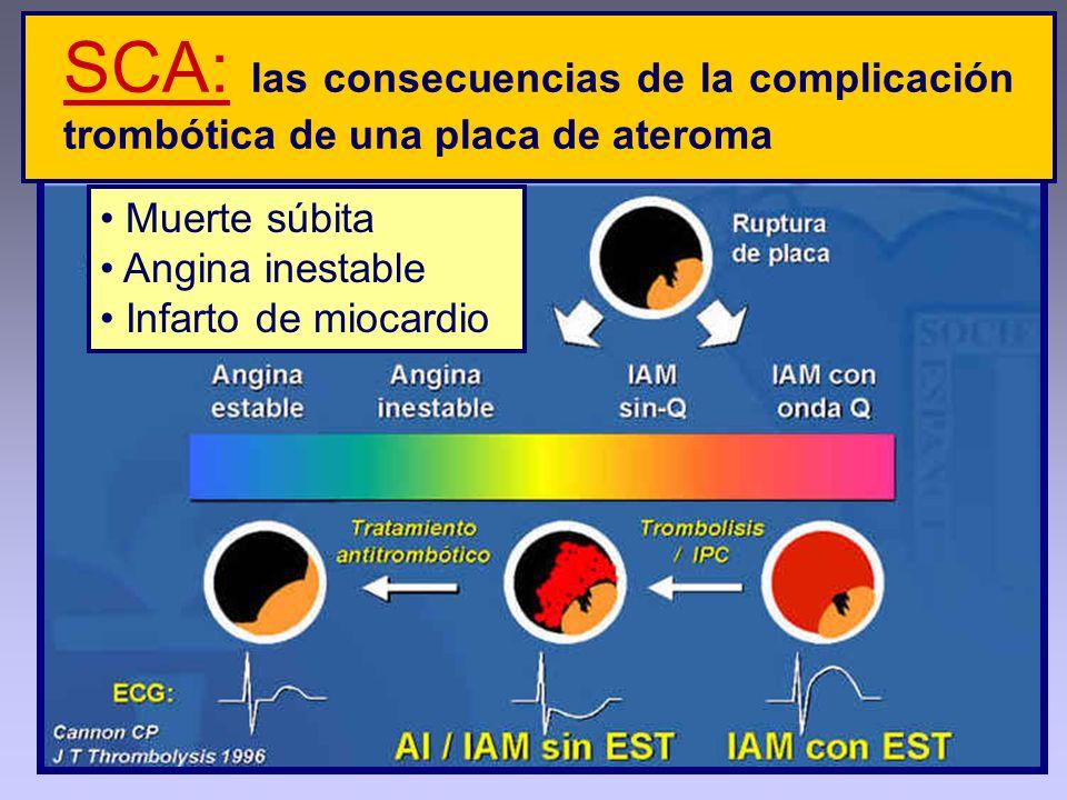 SCA: las consecuencias de la complicación trombótica de una placa de ateroma