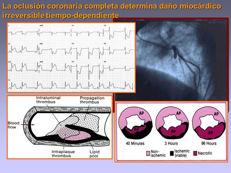 La oclusión coronaria completa determina daño miocárdico irreversible tiempo-dependiente