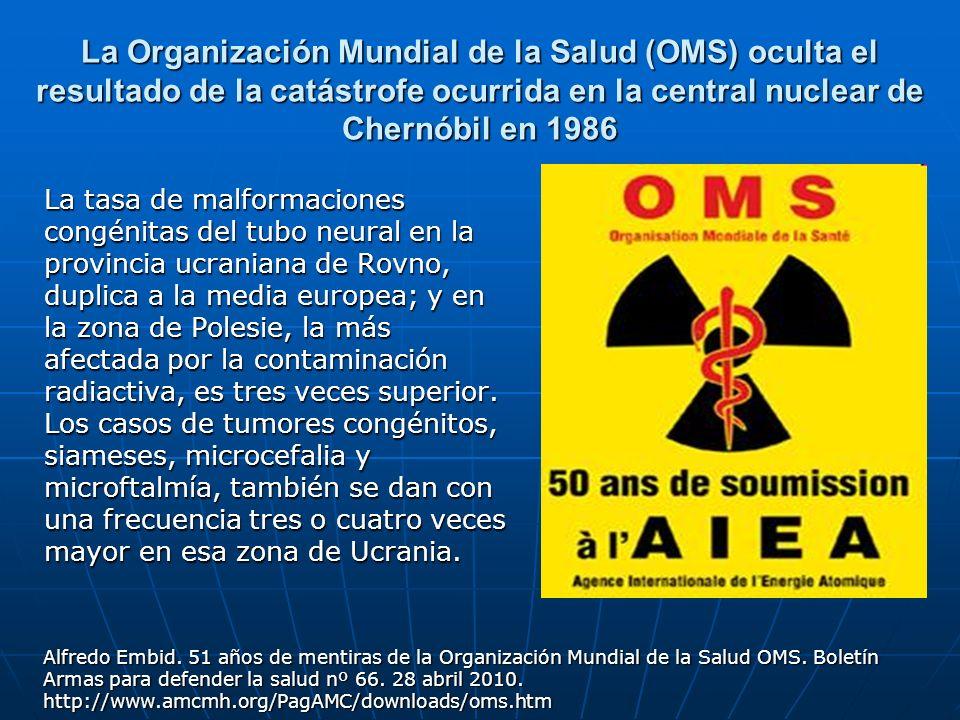 La Organización Mundial de la Salud (OMS) oculta el resultado de la catástrofe ocurrida en la central nuclear de Chernóbil en 1986