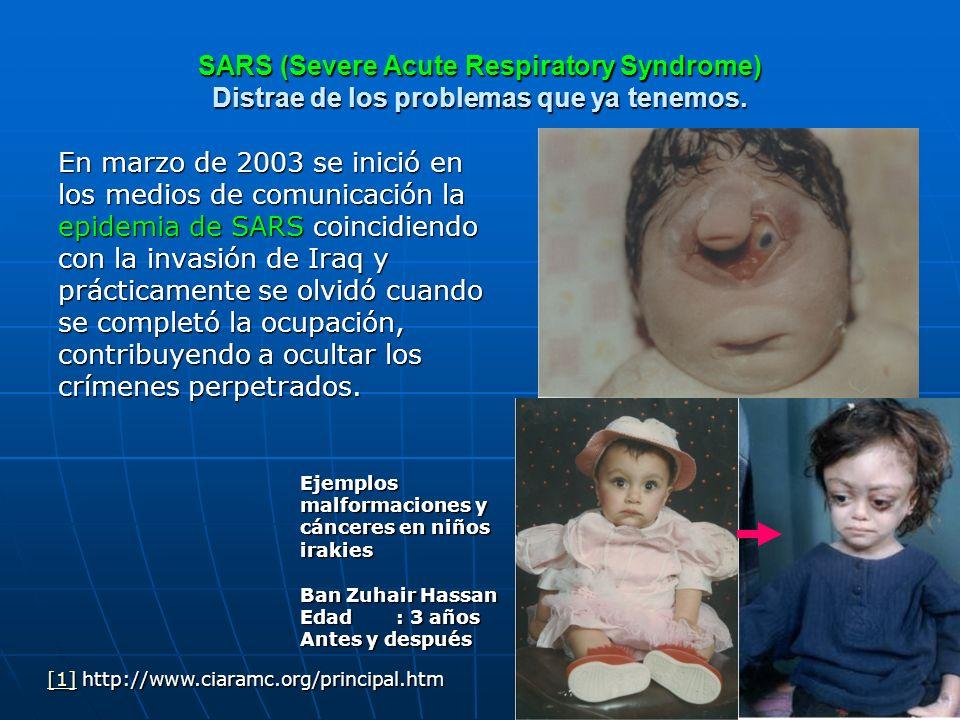 SARS (Severe Acute Respiratory Syndrome) Distrae de los problemas que ya tenemos.