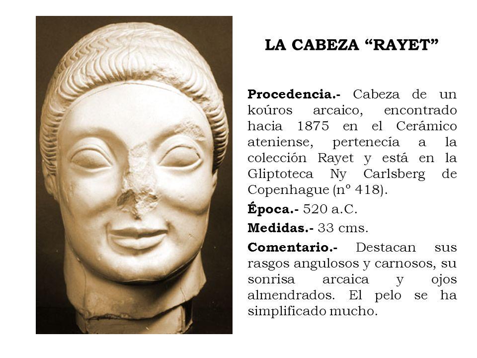 LA CABEZA RAYET