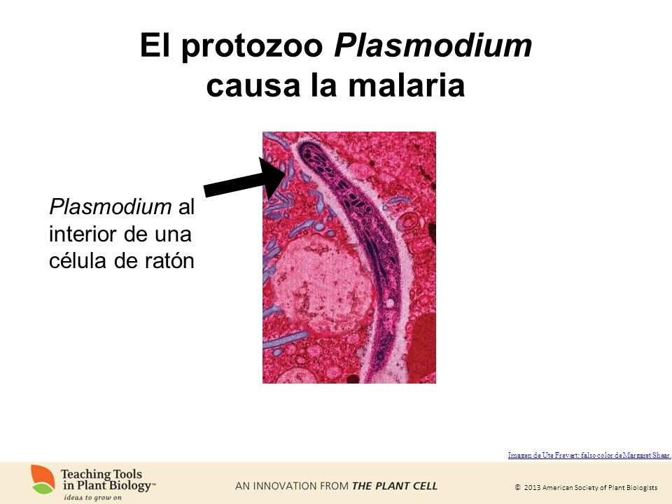 El protozoo Plasmodium causa la malaria