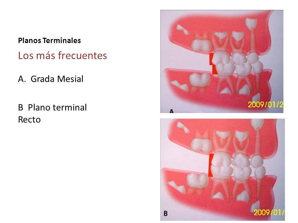 Los más frecuentes A. Grada Mesial B Plano terminal Recto