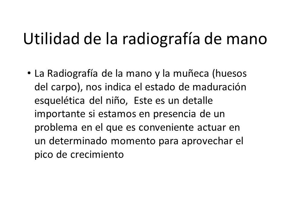 Utilidad de la radiografía de mano