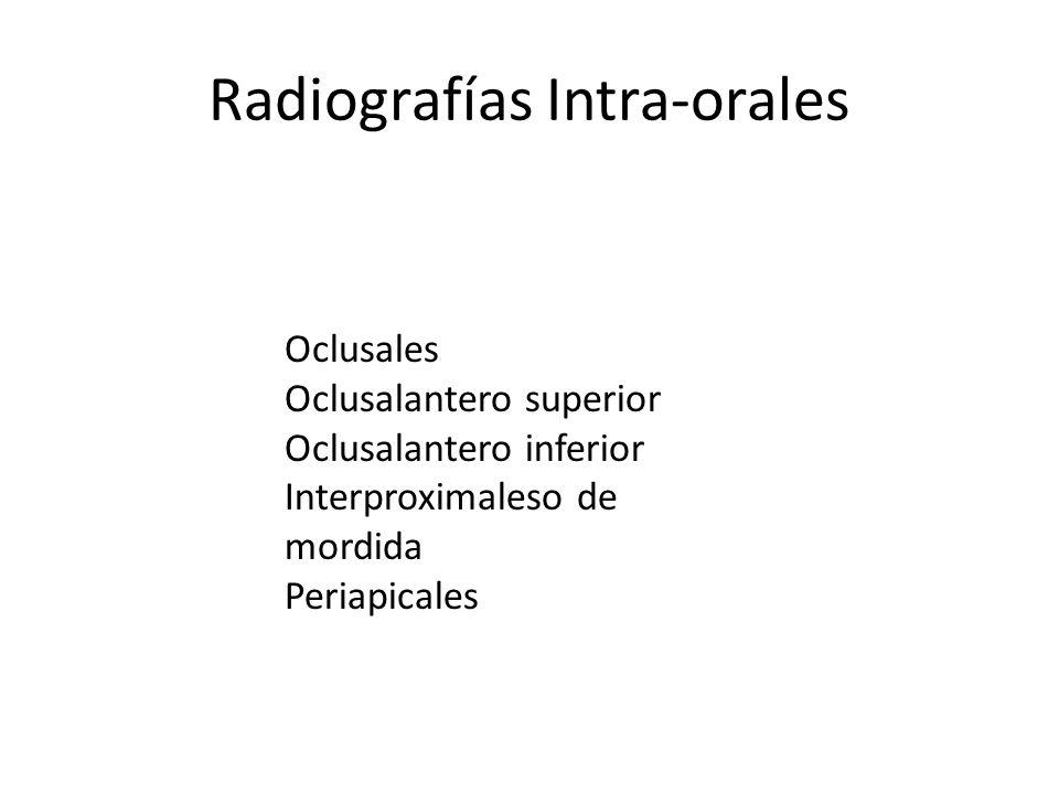 Radiografías Intra-orales