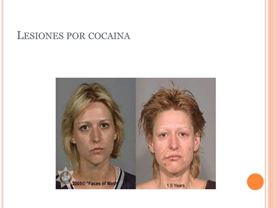 Lesiones por cocaina