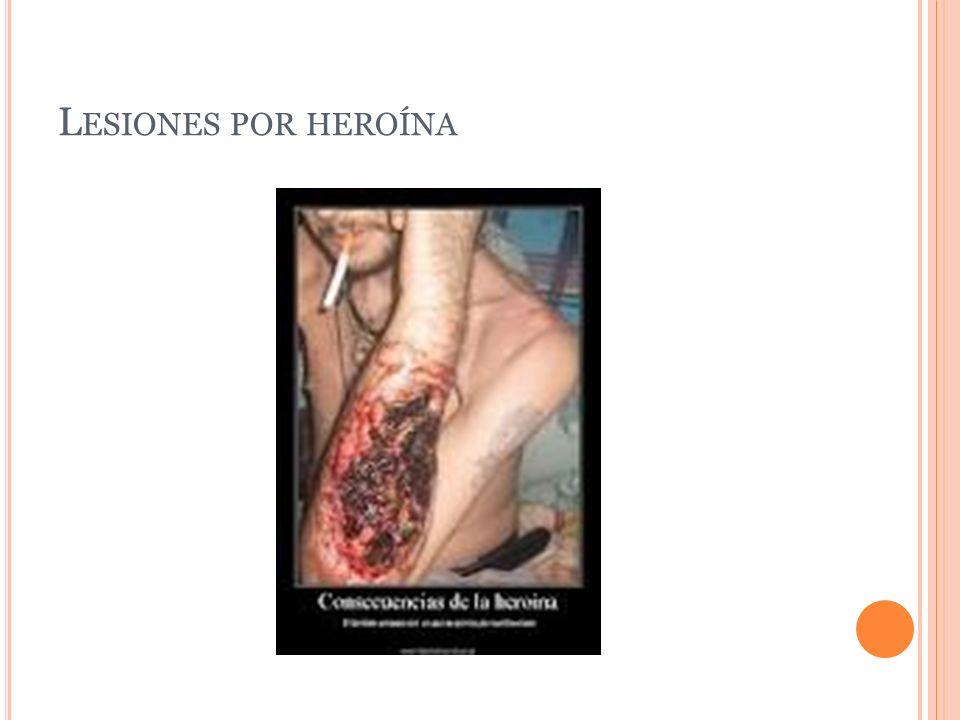 Lesiones por heroína