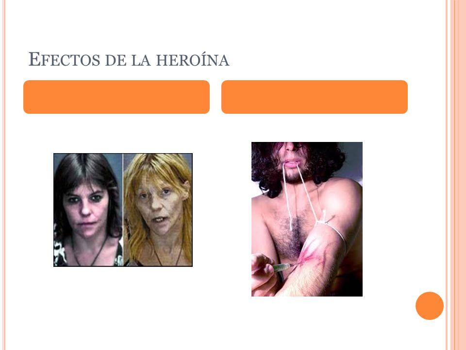 Efectos de la heroína