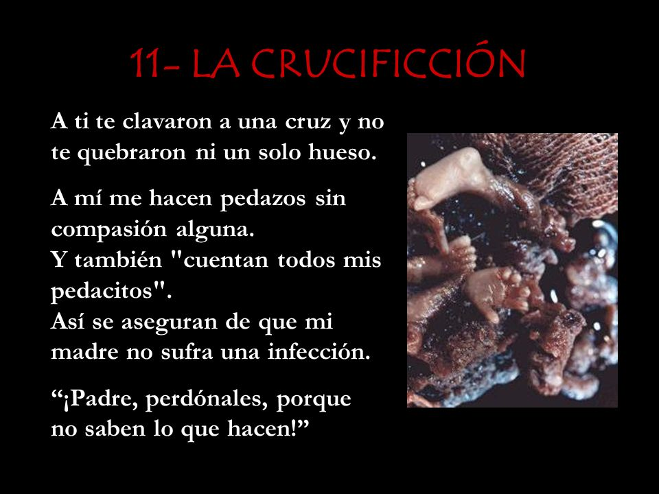 11- LA CRUCIFICCIÓN A ti te clavaron a una cruz y no te quebraron ni un solo hueso.