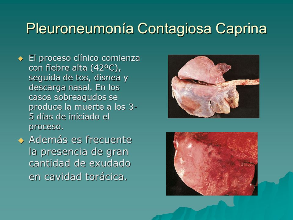 Pleuroneumonía Contagiosa Caprina