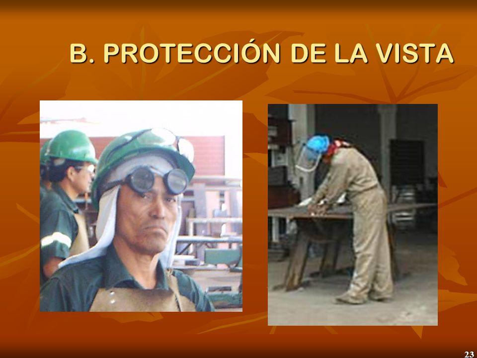 B. PROTECCIÓN DE LA VISTA