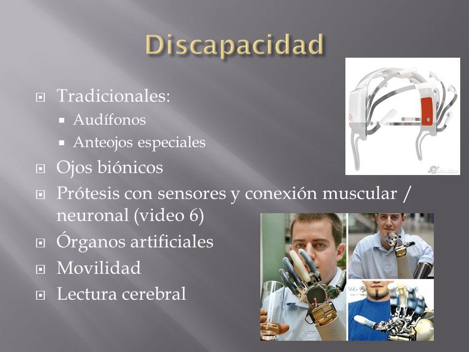 Discapacidad Tradicionales: Ojos biónicos