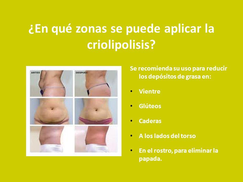 ¿En qué zonas se puede aplicar la criolipolisis