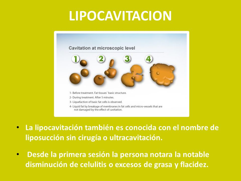 LIPOCAVITACION La lipocavitación también es conocida con el nombre de liposucción sin cirugía o ultracavitación.