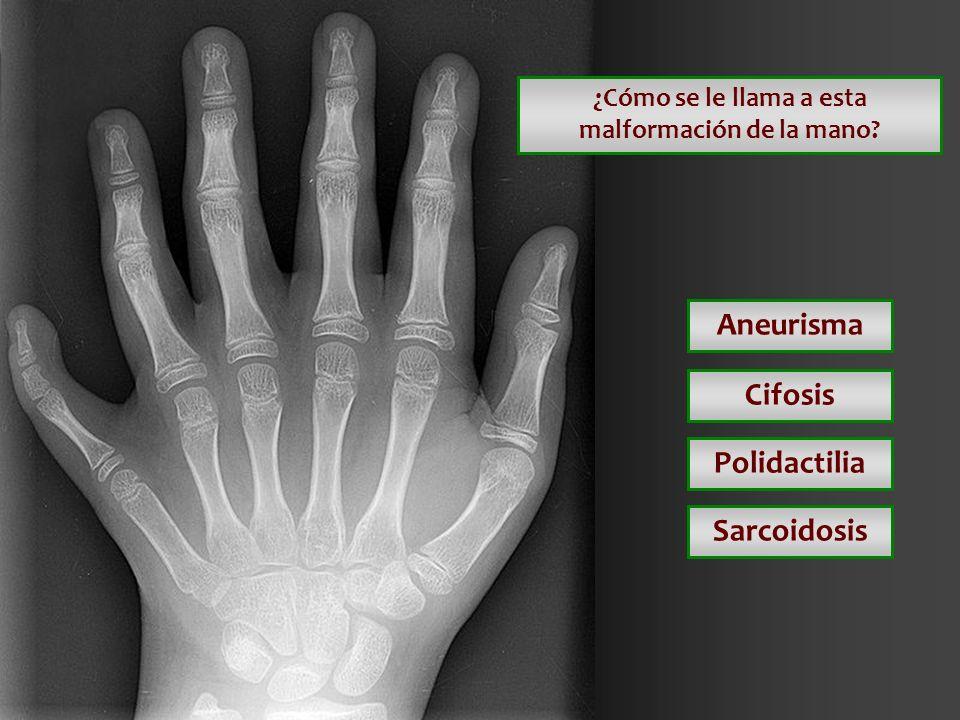 ¿Cómo se le llama a esta malformación de la mano