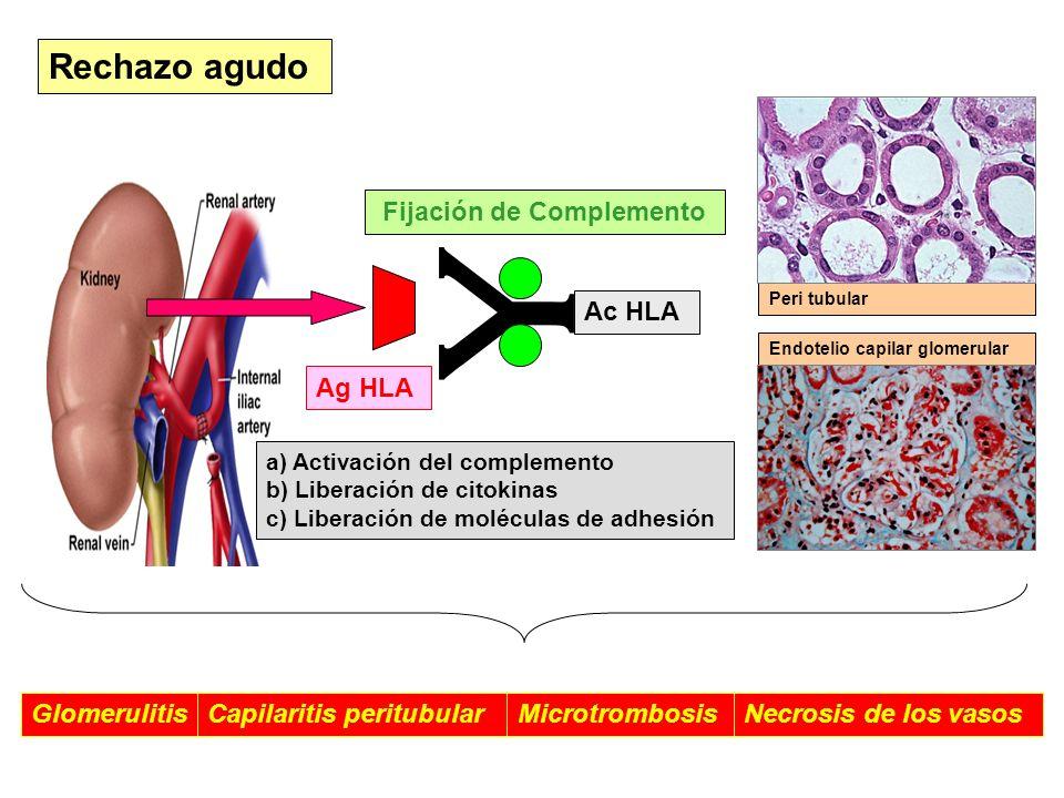 Rechazo agudo Fijación de Complemento Ac HLA Ag HLA Glomerulitis