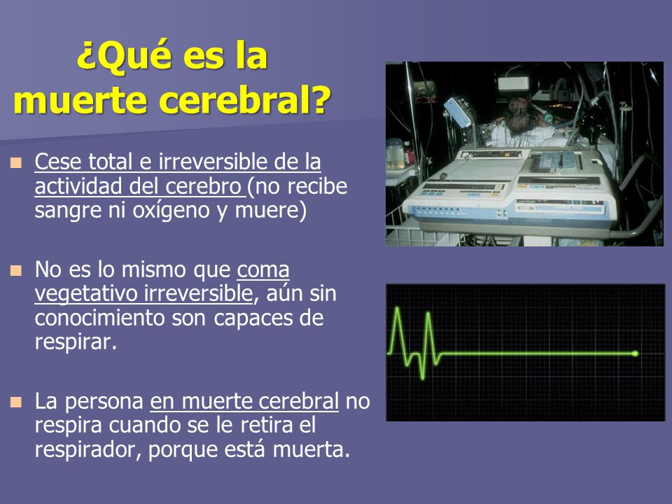 ¿Qué es la muerte cerebral