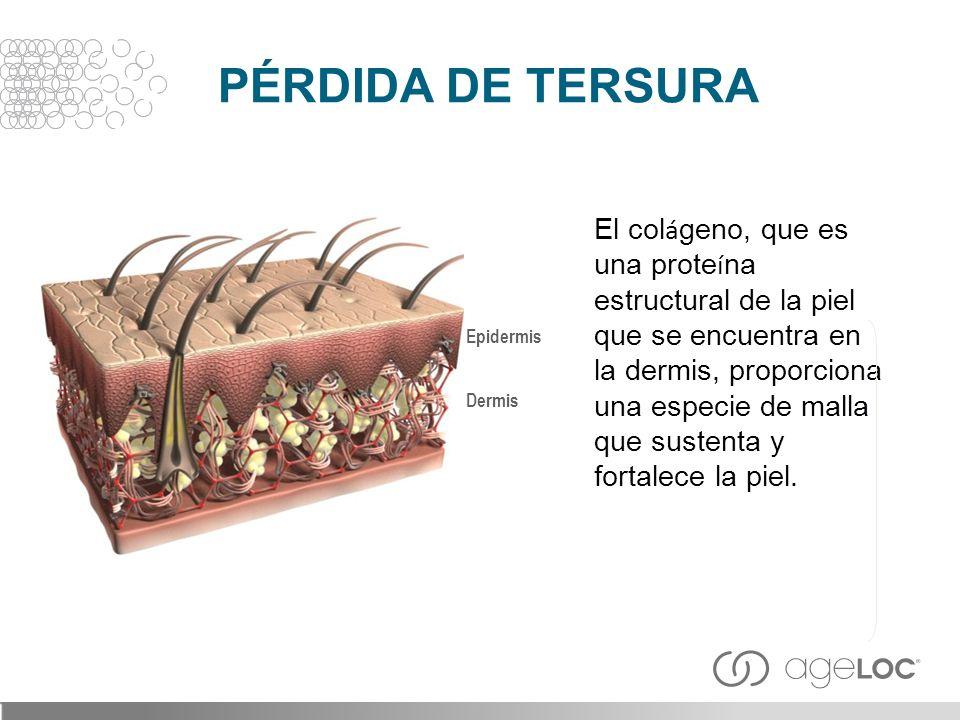 PÉRDIDA DE TERSURA