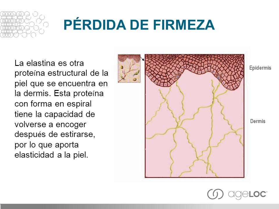 PÉRDIDA DE FIRMEZA