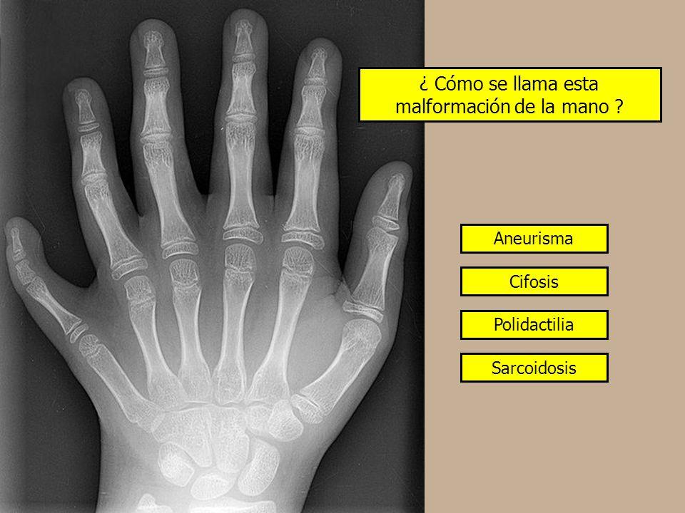 ¿ Cómo se llama esta malformación de la mano