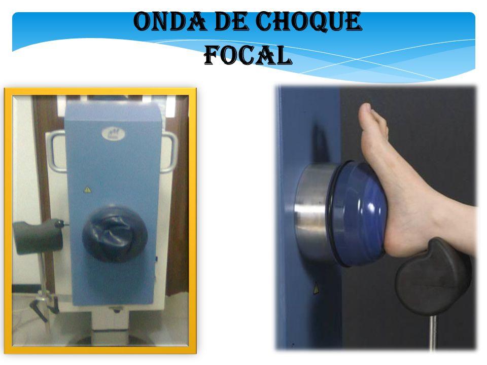 ONDA DE CHOQUE FOCAL