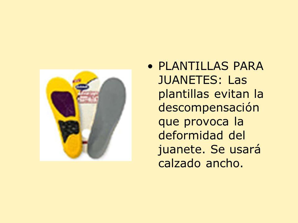 PLANTILLAS PARA JUANETES: Las plantillas evitan la descompensación que provoca la deformidad del juanete.