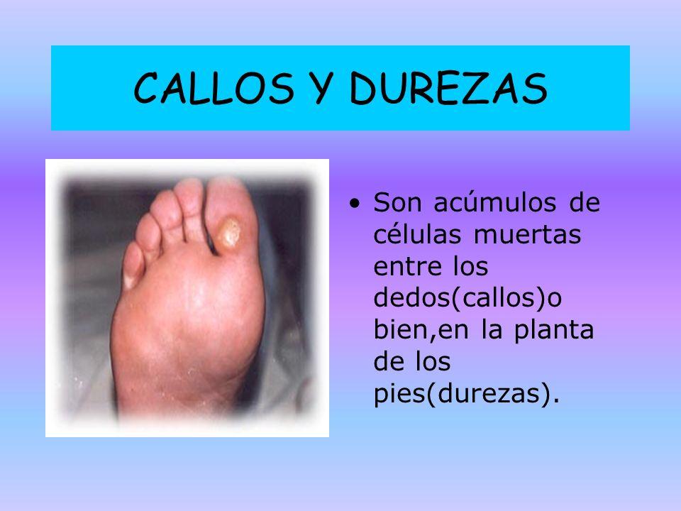 CALLOS Y DUREZAS Son acúmulos de células muertas entre los dedos(callos)o bien,en la planta de los pies(durezas).