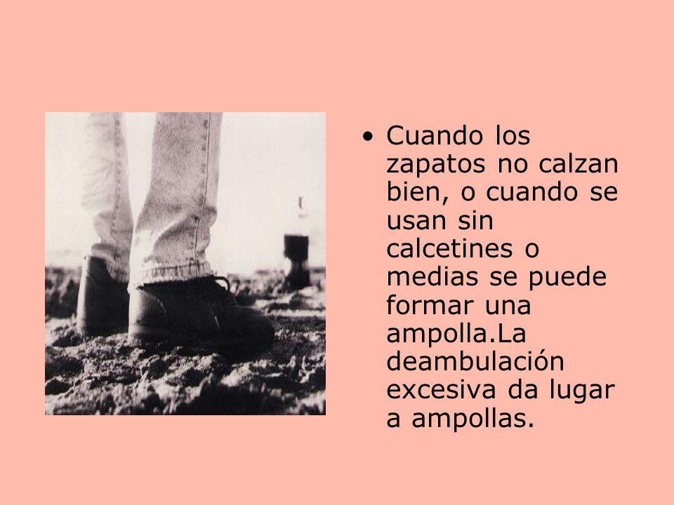 Cuando los zapatos no calzan bien, o cuando se usan sin calcetines o medias se puede formar una ampolla.La deambulación excesiva da lugar a ampollas.