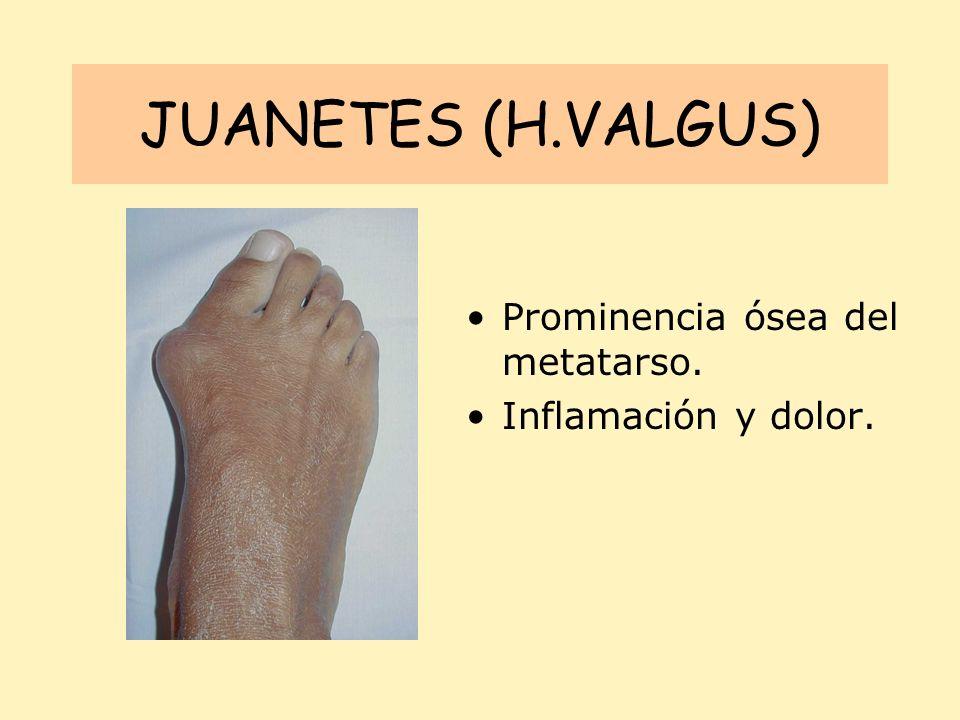 JUANETES (H.VALGUS) Prominencia ósea del metatarso.