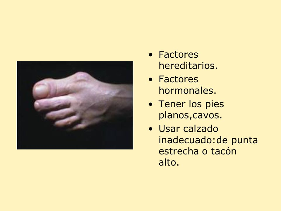 Factores hereditarios.