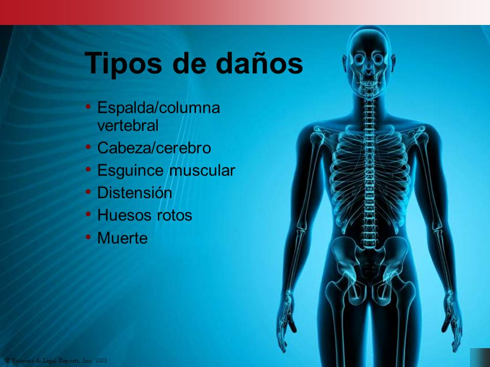 Tipos de daños Espalda/columna vertebral Cabeza/cerebro