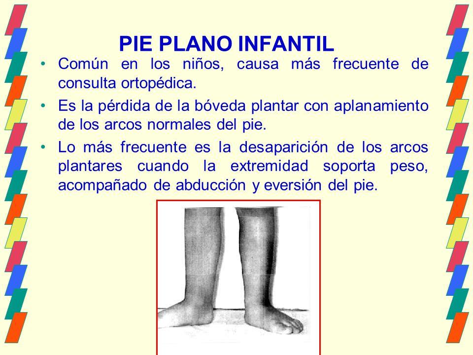 PIE PLANO INFANTIL Común en los niños, causa más frecuente de consulta ortopédica.