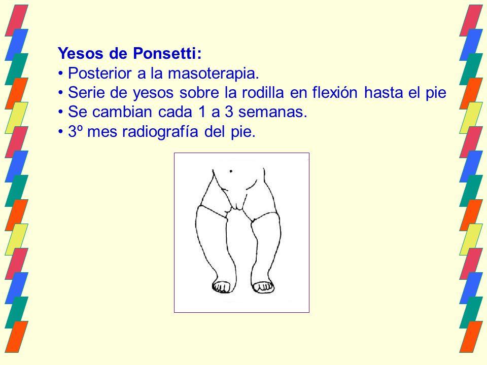Yesos de Ponsetti: Posterior a la masoterapia. Serie de yesos sobre la rodilla en flexión hasta el pie.