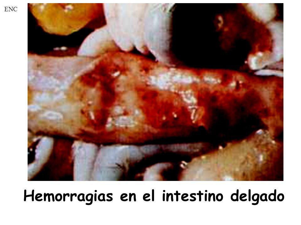 Hemorragias en el intestino delgado