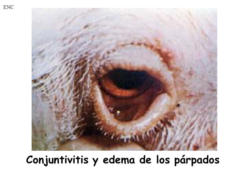 Conjuntivitis y edema de los párpados