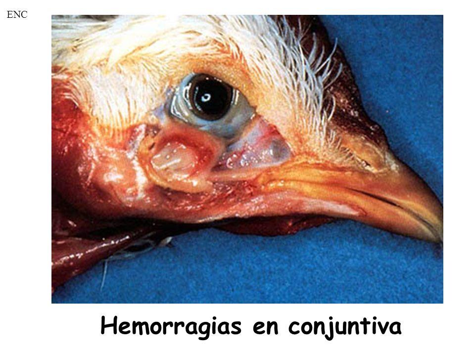 Hemorragias en conjuntiva