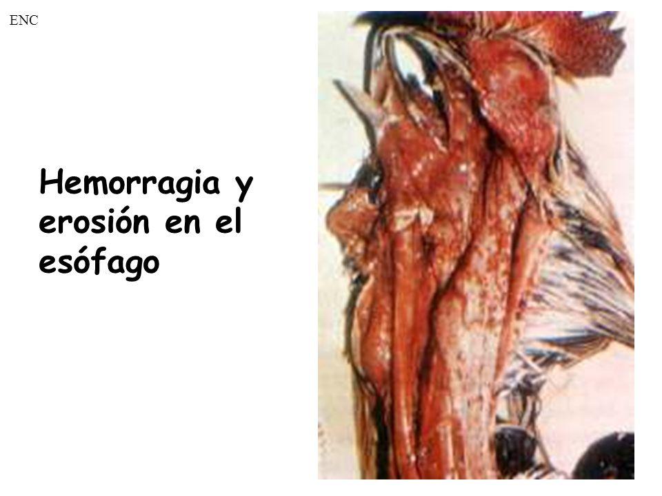 ENC Hemorragia y erosión en el esófago