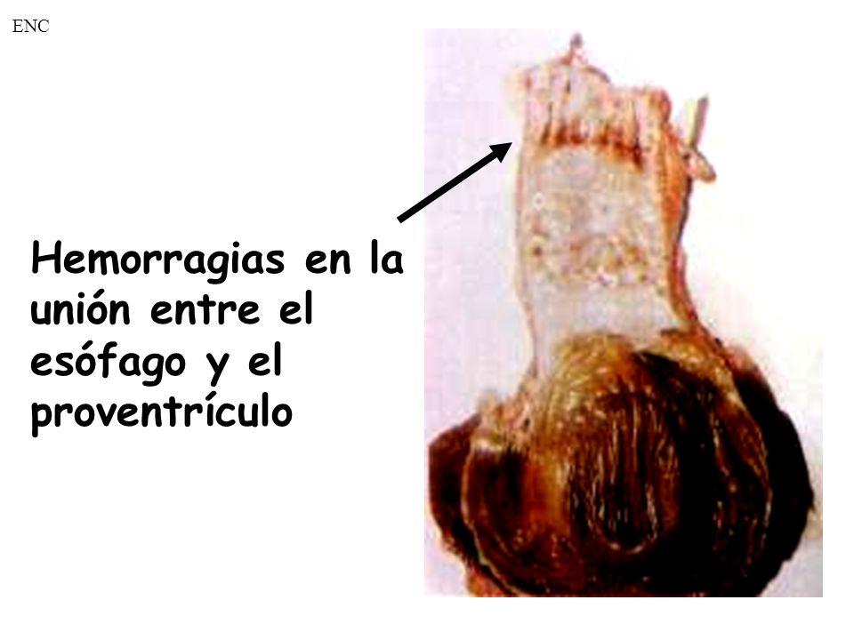 ENC Hemorragias en la. unión entre el. esófago y el.
