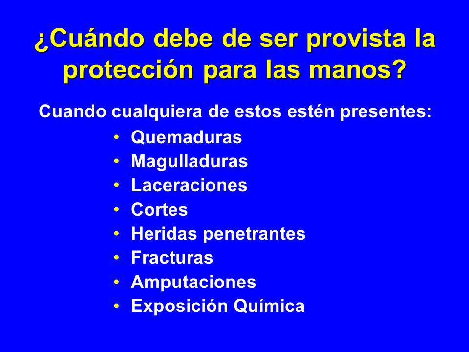 ¿Cuándo debe de ser provista la protección para las manos