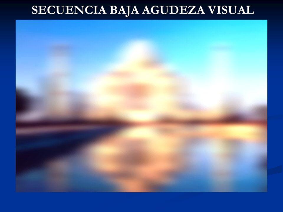 SECUENCIA BAJA AGUDEZA VISUAL