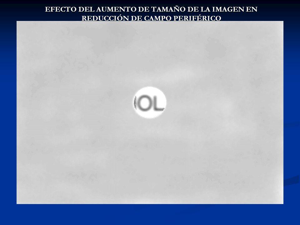 EFECTO DEL AUMENTO DE TAMAÑO DE LA IMAGEN EN REDUCCIÓN DE CAMPO PERIFÉRICO