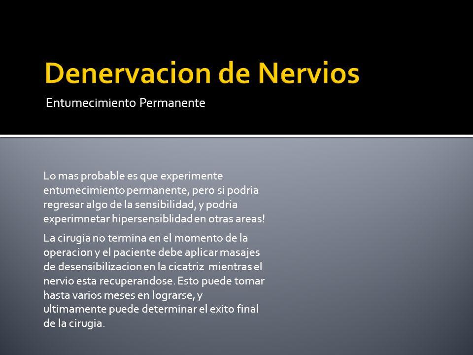 Denervacion de Nervios