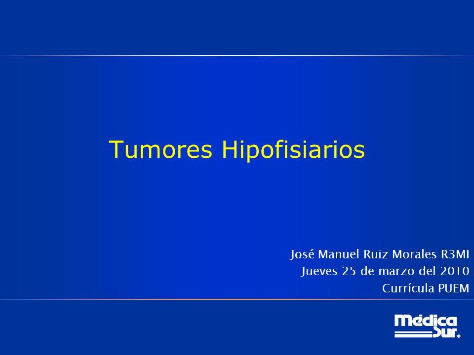 Tumores Hipofisiarios