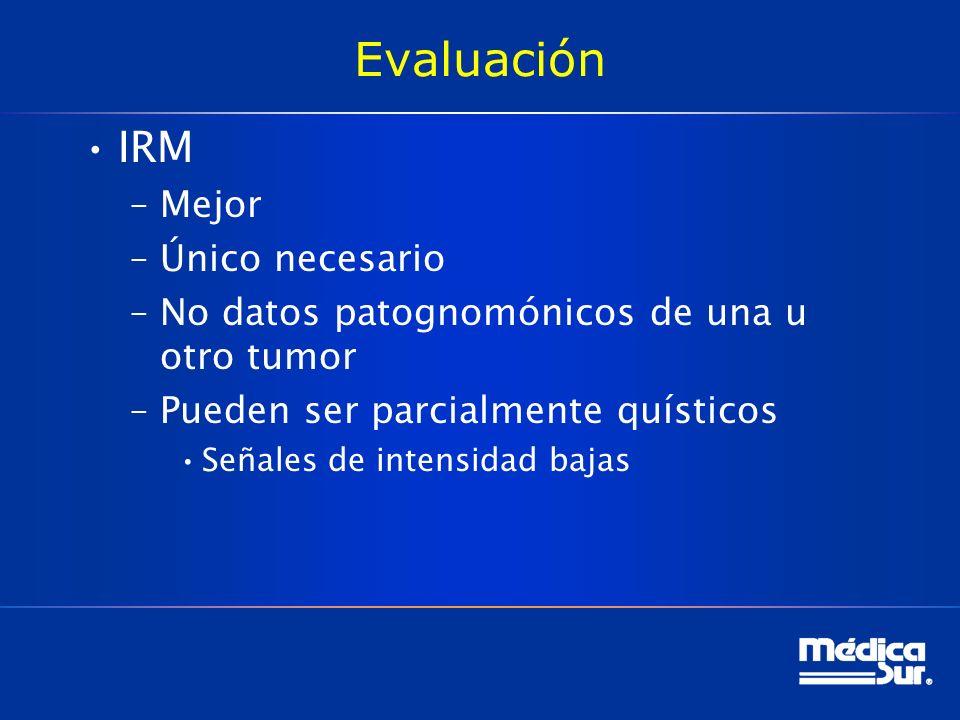 Evaluación IRM Mejor Único necesario
