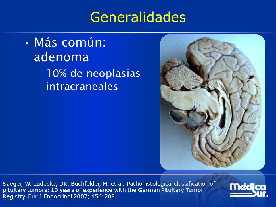 Generalidades Más común: adenoma 10% de neoplasias intracraneales