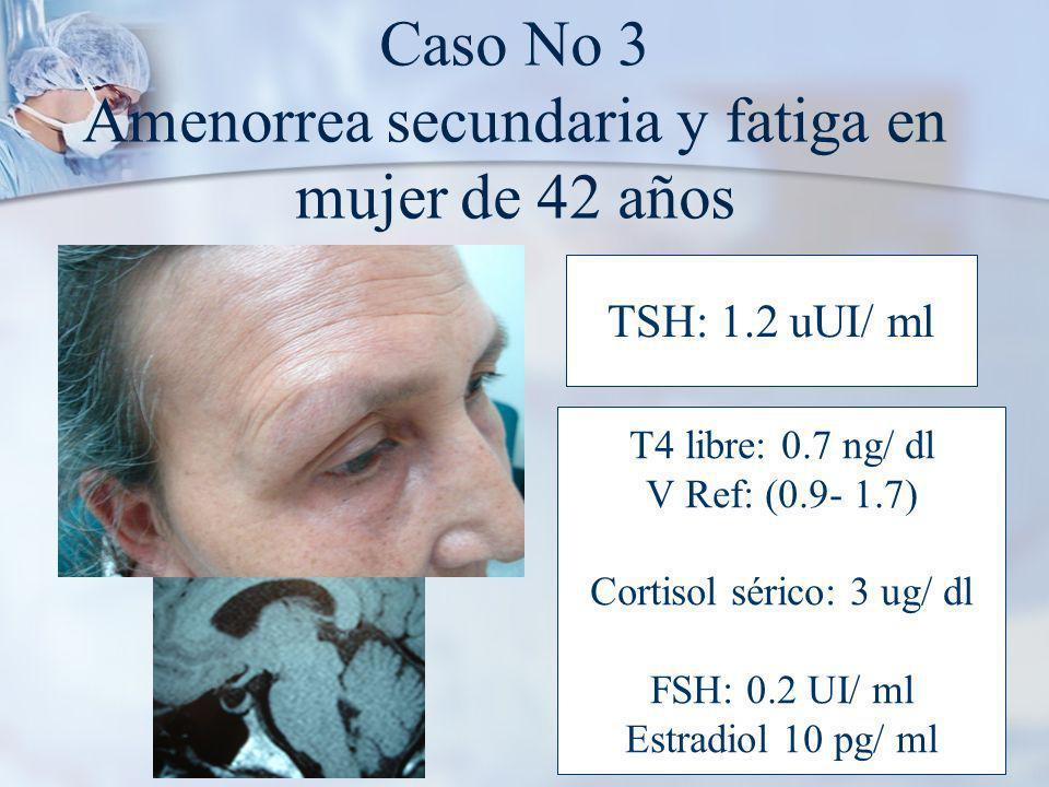 Caso No 3 Amenorrea secundaria y fatiga en mujer de 42 años